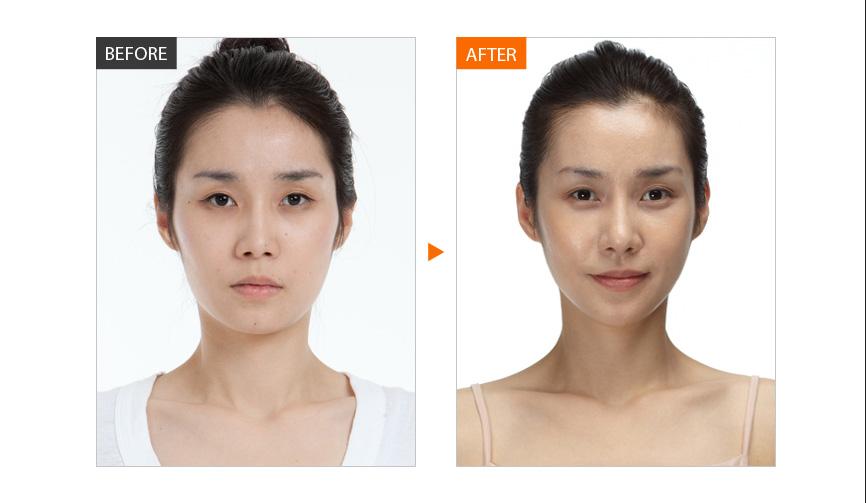 面部脂肪填充,全脸脂肪填充.吗,面部脂肪填充多少钱,自体脂肪丰太阳穴